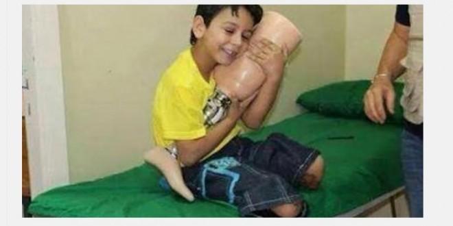 صورة لطفل بعد حصوله على طرف صناعي - أنترنت